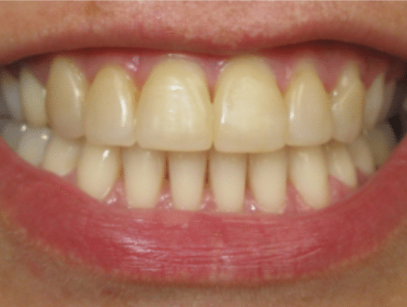 Teeth Whitening Before Bromsgrove Dental Clinic