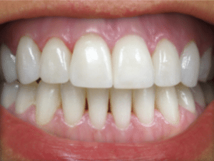 Teeth Whitening After Bromsgrove Dental Clinic