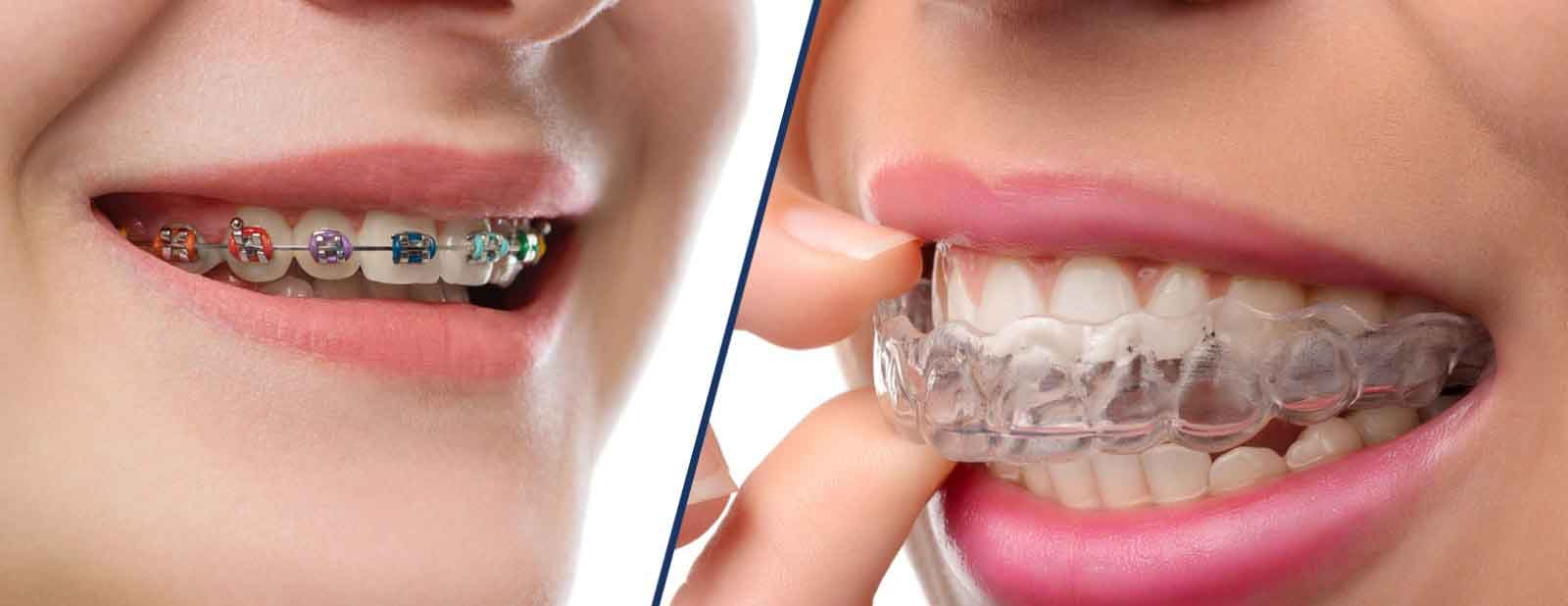 Invisalign dental braces Bromsgrove Dental Clinic