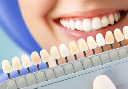 smiling-young-woman-cosmetological-teeth-whitening-dental-clinic-selection-tone-implant-tooth